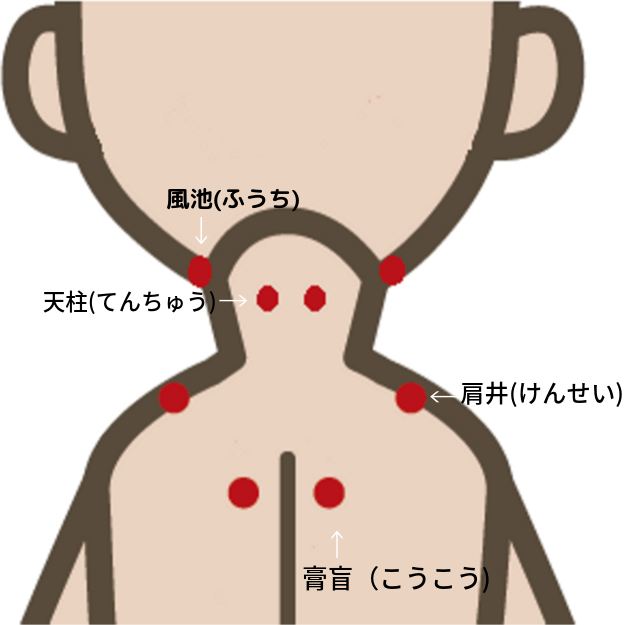body-linchpin
